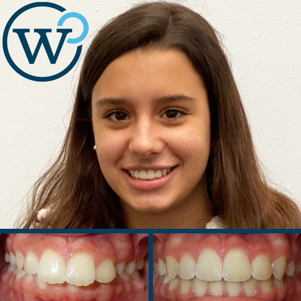 affordable orthodontics charlotte nc