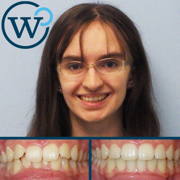best invisalign results charlotte nc