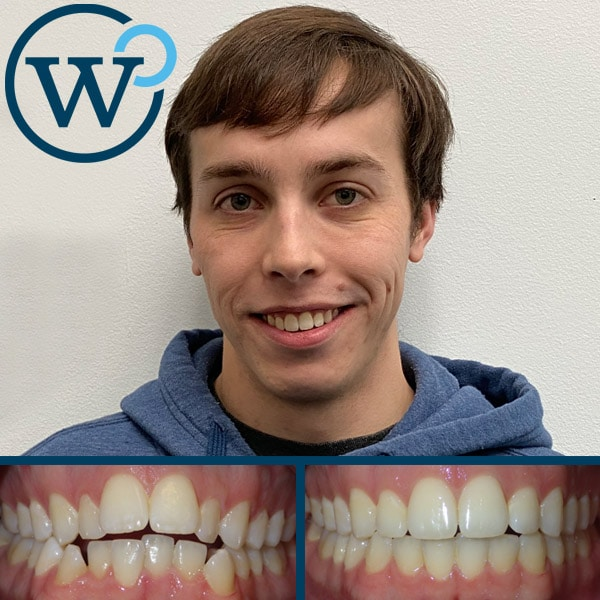 best braces results charlotte nc