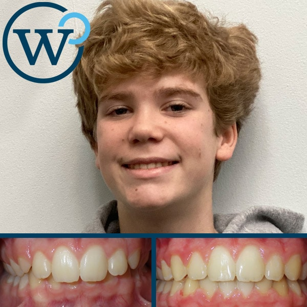 charlotte nc orthodontists