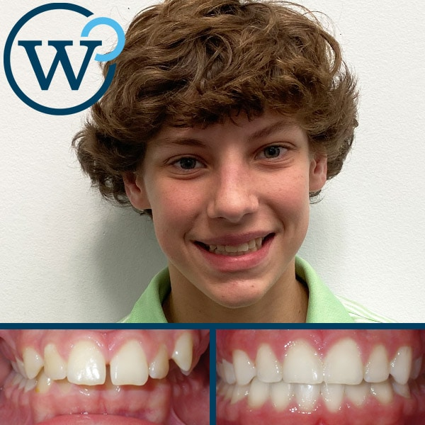 top orthodontist charlotte nc