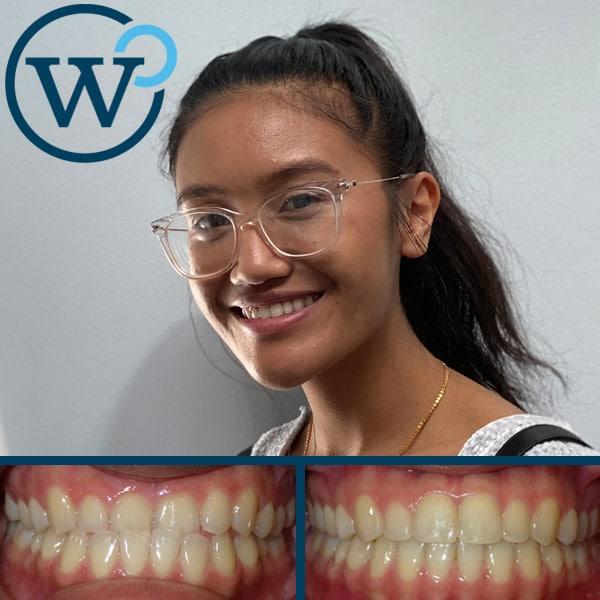 best orthodontist charlotte nc
