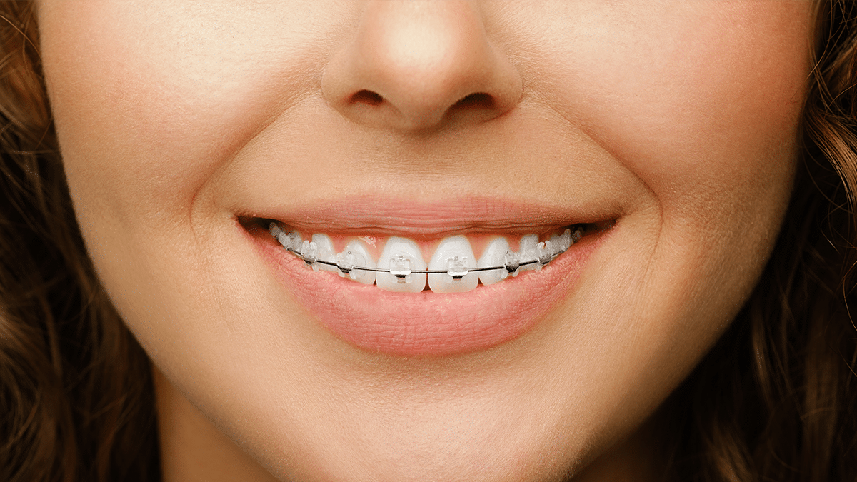 Invisible Braces for Adults