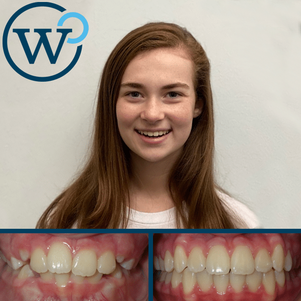 Crowding and Overbite with Braces in 20 Months