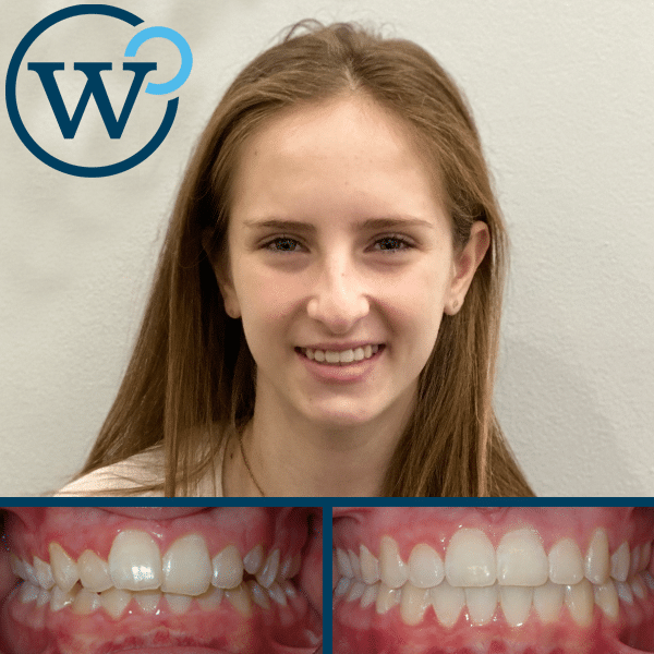 Crowding and Overbite Treatment with Braces