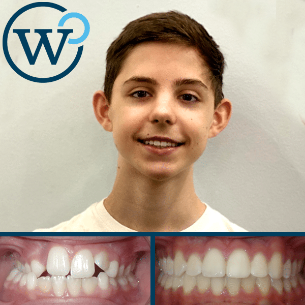 crossbite treated with palatal expander and braces